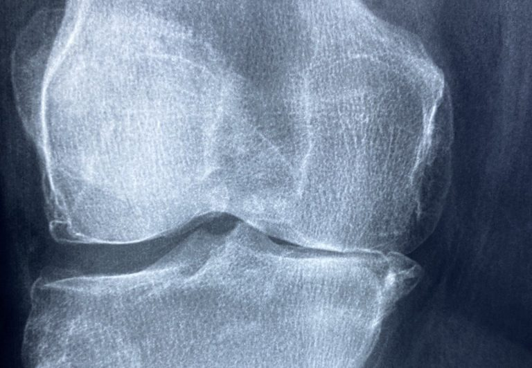 Orthopedic Advice From an Ophthalmologist